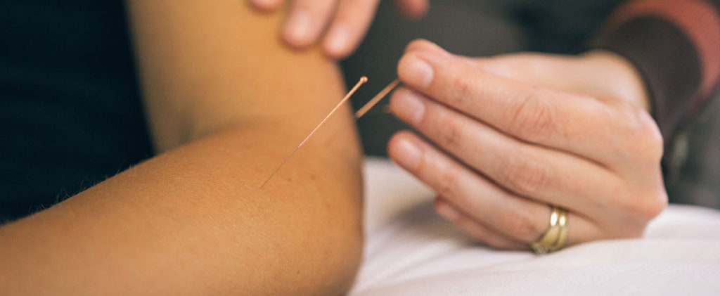 Acupuncture- Traditional method of treatment